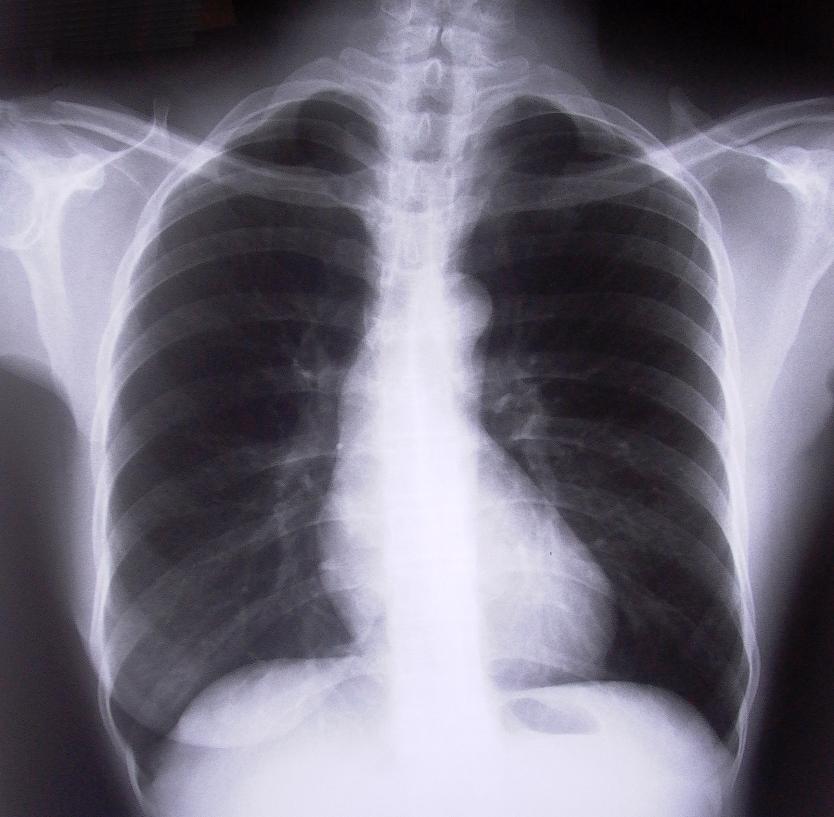Röntgen mynd af brjóskassa